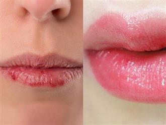 Mùa đông đến rồi, phụ nữ nên học cách làm hỗn hợp thay thế son dưỡng này để đôi môi luôn mềm mịn, không bong tróc