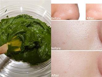 Trộn bột trà xanh với thứ này đắp mặt 3 lần/tuần, lỗ chân lông to cỡ nào cũng se khít cực nhanh giúp da mịn màng, trắng hồng