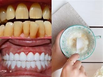 Mua sữa chua về ăn nhân tiện làm theo cách này để hô biến răng vàng khè hóa thành trắng sứ, hôi miệng không ai dám đứng gần cũng khỏi vĩnh viễn