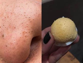 Sốc: Đã tìm ra phương pháp hút sạch mụn đầu đen chỉ sau 5 phút không đau rát, không làm to lỗ chân lông siêu dễ từ 1 quả trứng gà luộc