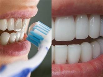 Súc miệng với oxy già theo cách này, mảng bám tự động bong ra hết sạch, cao răng cả năm không cần đi lấy nếu làm đều đặn 1 lần/tuần