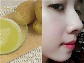 Ép nước củ khoai tây đặt vào tủ lạnh để dùng dần - 'Thần dược' trị mụn, xóa mờ nám, trẻ hóa làn da