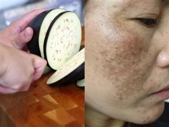 Thái cà tím thành lát rồi đắp lên mặt, nám, tàn nhang và sạm đen sẽ 'một đi không trở lại' sau 7 ngày da đẹp như vừa đi dưỡng ở spa