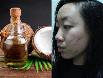 Thoa dầu dừa lên da trong 1 tuần để chữa sẹo mụn, cô nàng này đã nhận được kết quả đáng thất vọng