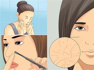 Nếu không muốn da mặt nhăn nheo, sần sùi ở tuổi 25, tuyệt đối tránh xa 5 thói quen này