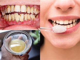 Trắng răng cực nhanh, chấm dứt hôi miệng dai dẳng suốt 10 năm nhờ nhai vài hạt lạc sống trong 3 phút