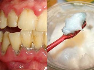 Trộn thứ này với muối rồi chà trong 3 phút, răng ố vàng bao nhiêu cũng trắng bóng, thơm tho, cao răng lâu năm sẽ tự rụng hoàn toàn