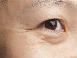 Bí quyết trị nếp nhăn dưới mắt hiệu quả
