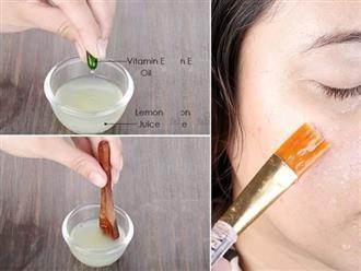 Kết hợp với 3 thứ này là cách dùng Vitamin E trị mụn, xóa mờ nám, dưỡng trắng da hiệu quả nhất
