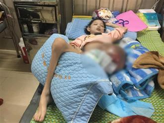 """Bé gái 10 tuổi mắc ung thư xương, mẹ đau nhói lòng khi con hỏi """"bao giờ được về nhà"""""""