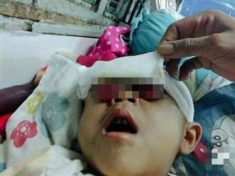 Ước mơ được nhìn thấy cha mẹ của cậu bé 6 tuổi có đôi mắt bị nổ tung vì căn bệnh hiểm nghèo