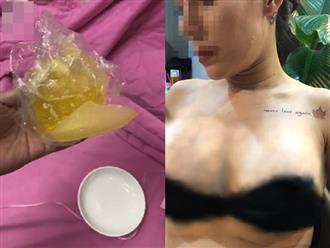 Em kết nghĩa của ca sĩ Quách Tuấn Du bị vỡ túi ngực 2.000 USD trên máy bay, bác sĩ thẩm mỹ biến mất