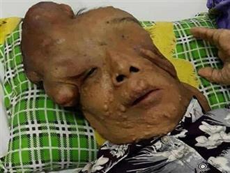 Hẩm hiu số phận của người đàn bà mang khối u khổng lồ trên mặt: 'Xin cho tôi cơ hội sống bên mẹ già'