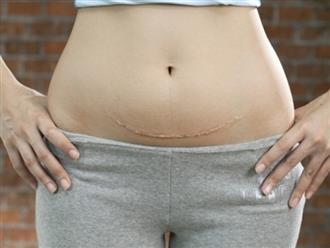 3 sự thật về sinh mổ có thể mẹ bầu chưa biết