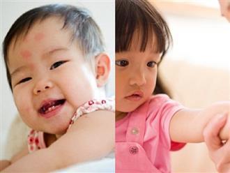 Bác sĩ Nhi hướng dẫn cha mẹ cách trị vết muỗi đốt đơn giản cho trẻ em