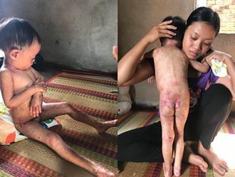 Tiếng khóc xé lòng của bé gái 3 tuổi dân tộc Chơ Ro vừa sinh ra đã bị bóng nước loang lổ nổi đầy người