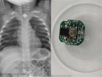 Bé trai 3 tuổi thoát chết ngoạn mục sau khi nuốt bảng điện tử và pin nút từ món đồ chơi quen thuộc của trẻ em