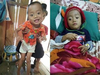 Bị mẹ tìm mọi cách phá bỏ từ trong bào thai, bé trai H'Mông 5 tuổi khuyết tật vẫn khát khao ước mơ đến trường