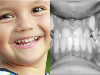 Cần nắn chỉnh răng cho trẻ ở tuổi nào?