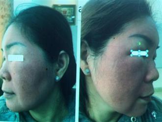 Cảnh báo: Ham làm đẹp cấp tốc, người phụ nữ tự ý bôi thuốc đông y khiến gương mặt sưng đỏ, nổi vảy kinh hoàng