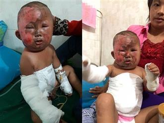 Nỗi đau đớn khủng khiếp của em bé H'Mông 3 tuổi chui ra từ đống cỏ khô đang cháy sau phút lơ là của người mẹ trẻ