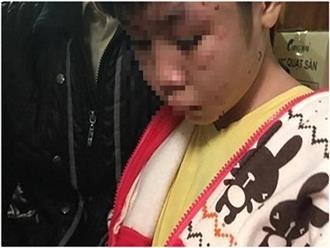 """Vụ bé trai 10 tuổi bị bạo hành ở HN: """"Đừng hỏi về việc cháu bị bố đánh nữa"""""""