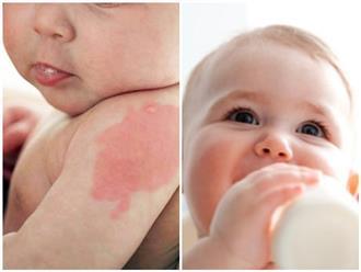 Dị ứng sữa bò ở trẻ sơ sinh: Dấu hiệu và cách phòng ngừa theo hướng dẫn của bác sĩ Nhi