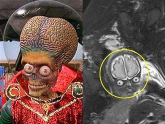 """Nhìn ảnh chụp MRI của vợ bầu, ông chồng thốt lên: """"Con tôi đến từ sao Hỏa!"""""""