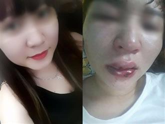 Chuyện thật như đùa: Cứu người gặp nạn, cô gái xinh đẹp được 'trả ơn' bằng cú đánh rách miệng, lệch sống mũi