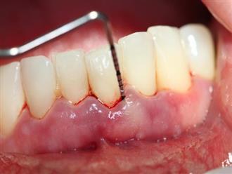 Vì sao mẹ bầu dễ mắc bệnh răng lợi?