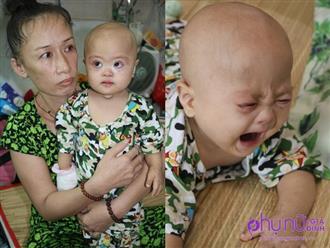 Xót lòng bé trai 11 tháng tuổi bị Down mắc ung thư máu: 'Trời cho con mạng sống sao nỡ cướp đi sức khỏe của con?'