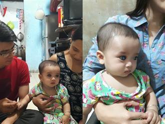 Xót xa bé trai 6 tháng tuổi xinh như thiên thần với đôi mắt màu xanh dương có nguy cơ mù lòa