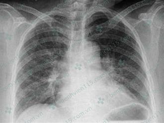 Chủ quan với 1 vết ong đốt ngón tay, người phụ nữ bị nhồi máu cơ tim