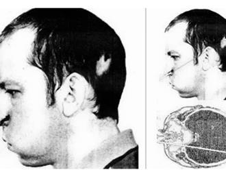 """Kỳ tích có thật: Bị nhiễm phóng xạ nhưng may mắn sống sót, nhà khoa học bất ngờ mang """"khuôn mặt âm dương"""""""