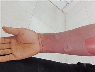Bệnh nhân 40 tuổi ở Cao Bằng bị phồng tróc da, lở loét, rỉ dịch, Bác sĩ cảnh báo người dân tránh xa thói quen này