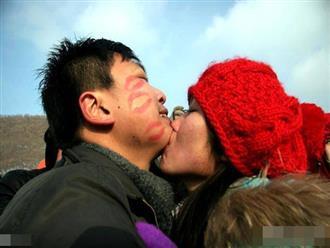 Sau khi hôn say đắm bạn gái, chàng trẻ tá hỏa vì bị nhiễm bệnh phải nhập viện
