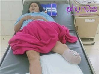 Tai họa liên tiếp giáng xuống gia đình người đàn bà cụt chân có chồng cùng 2 con đều mắc bệnh thần kinh
