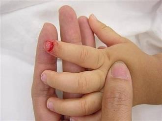 Con bị kẹt tay vào quạt chảy máu, mẹ mát tay sơ cứu thế này được bác sĩ gật gù khen ngợi