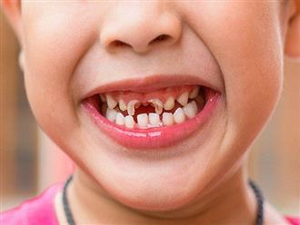 Những căn bệnh răng miệng thường gặp ở trẻ nhỏ, bố mẹ phải đặc biệt quan tâm
