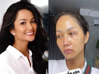 Hoa hậu H'Hen Niê khiến fan 'sốc ngất' khi để lộ gương mặt chi chít vết thâm tím, biết nguyên nhân mà 'xỉu ngang'