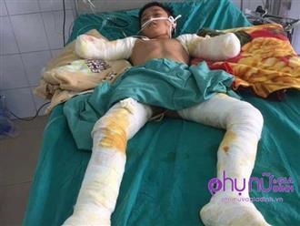 Nhói lòng lời cầu cứu của nam sinh lớp 7 bị cắt cụt 2 tay vì điện giật: 'Xin cứu đôi chân của con'