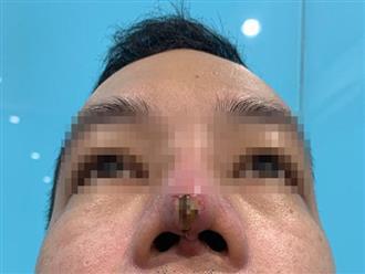 Chàng trai suýt mất mũi, lộ thanh silicone vì làm đẹp ở spa