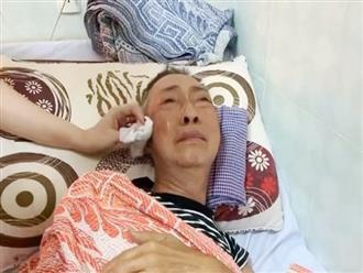 Nghệ sĩ Lê Bình qua đời vì ung thư phổi: Bác sĩ BV Phổi TW chỉ ra thủ phạm chính gây bệnh này