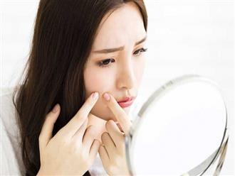 10 thói quen chăm sóc da khiến mặt bạn bị mụn nghiêm trọng hơn