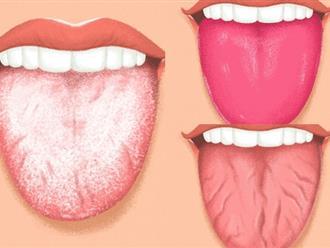 4 biểu hiện ở lưỡi cảnh báo tình trạng sức khỏe, số 4 rất nguy hiểm không được lơ là
