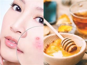 5 loại mặt nạ mật ong cho từng loại da chị em nên áp dụng ngay tại nhà