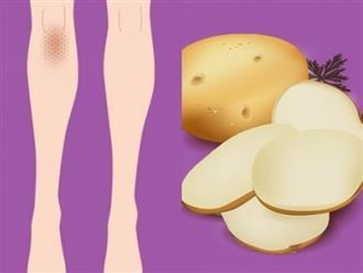 5 mẹo vặt trị thâm đầu gối, khuỷu tay giúp da sáng bật tông mà không cần kem dưỡng