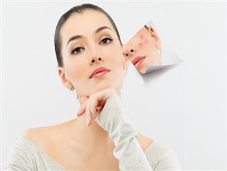 6 điều nên làm khi da nổi mụn