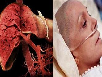 6 triệu chứng của ung thư gan giai đoạn đầu, đợi đến khi 'vàng da' thì đã muộn