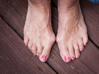 6 vấn đề sức khỏe biểu hiện ở bàn chân mà bạn tuyệt đối không nên bỏ qua